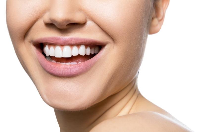 Cum să-ți albești dinții sau placebo – una din două